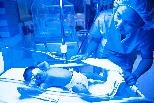 NeoBlue LED光療