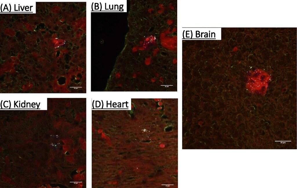 研究人員用螢光化學物質標記這些塑膠微粒以利辨識,科學家實驗發現,在鼠胚胎的(A)肝臟(B)肺臟(C)腎臟(D)心臟(E)腦部都出現塑膠微粒。圖片來源:《顆粒與纖維毒理學》期刊(CC BY 4.0)