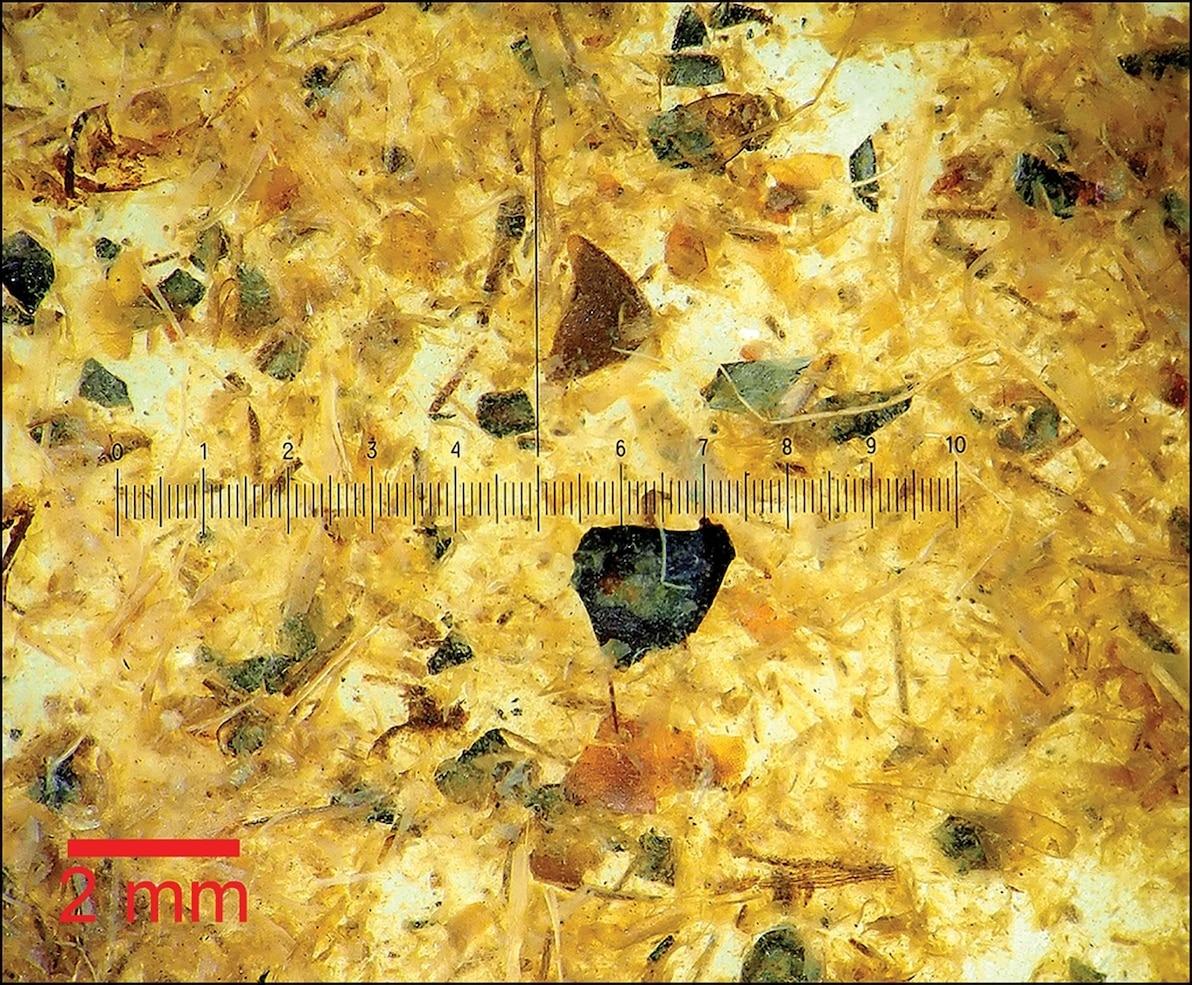 顯微鏡下的圖倫男子腸胃內容物。PHOTOGRAPH BY P.S. HENRIKSEN, THE DANISH NATIONAL MUSEUM