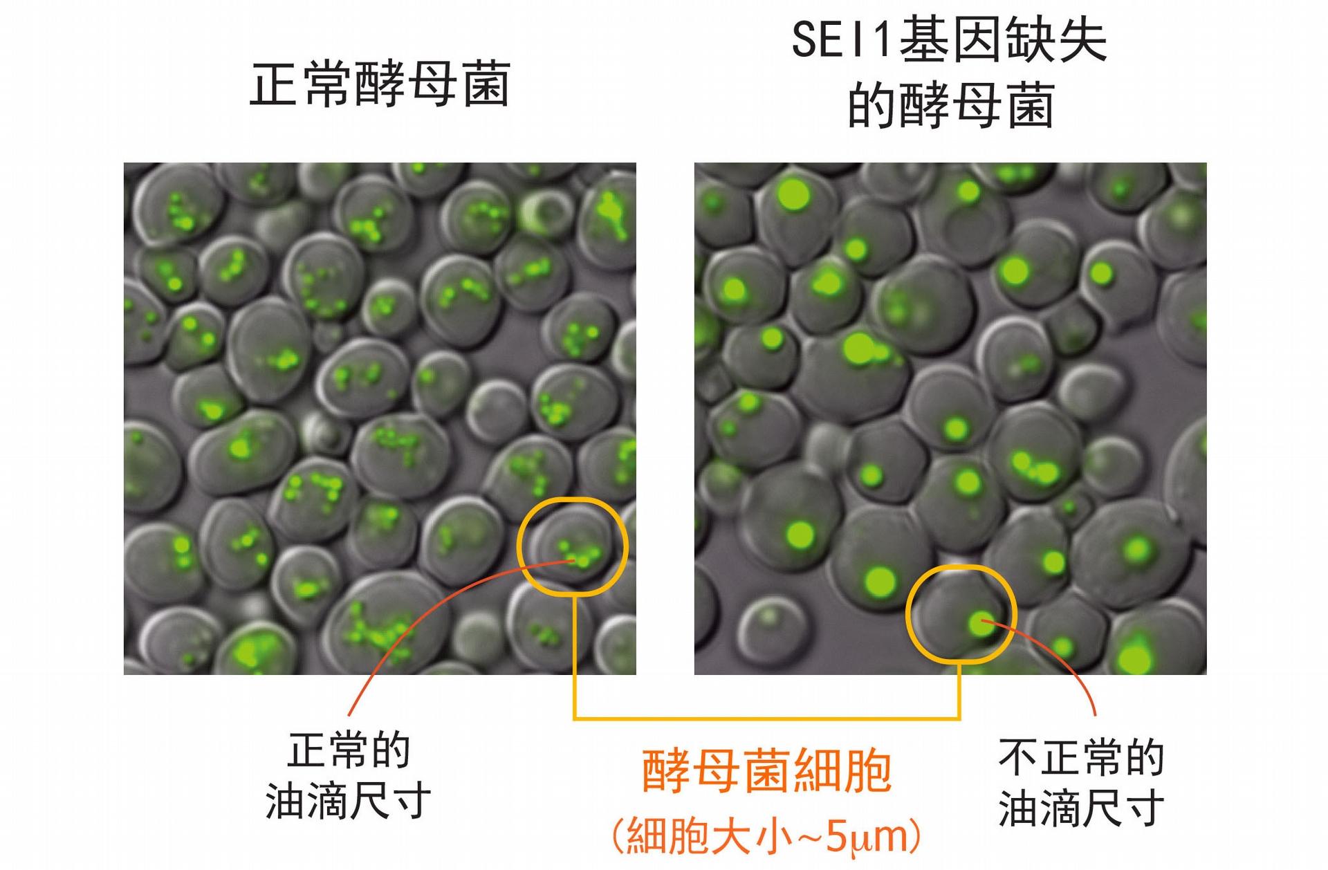左圖為正常酵母菌細胞,右圖為酵母菌單一基因 SEI1 的突變株,右圖明顯可見:細胞中綠色部分標示的油滴尺寸變大、且數量變少。 圖片來源│王昭雯