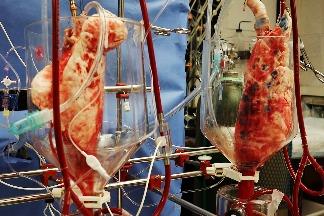透過基因改造,豬肺也能為人類血液供氧