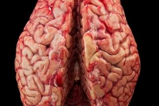 繪製大腦地圖