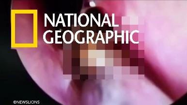 爬入婦人鼻腔的「小強」(請斟酌觀看)